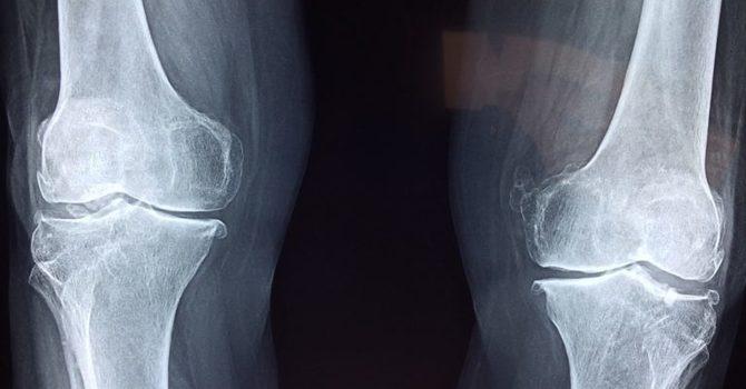 How Chiropractors Treat Knee Pain image