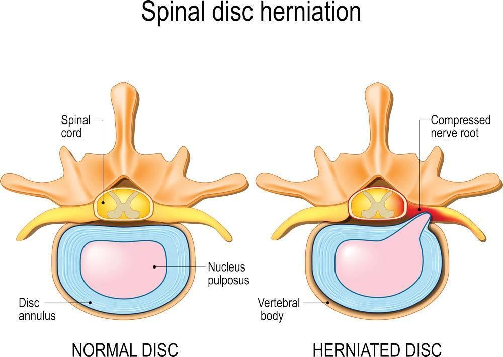 disc injury, disc herniation, disc bulge