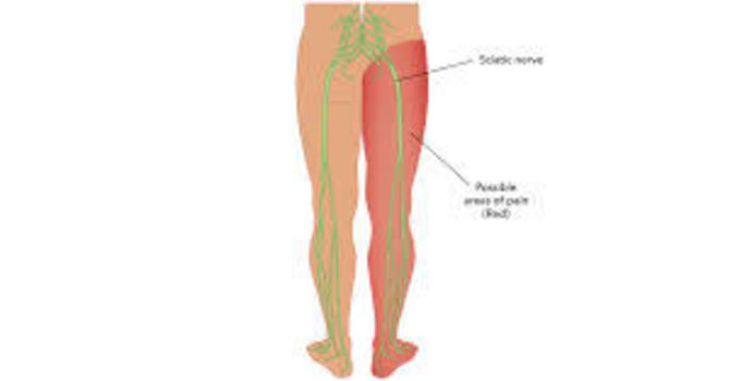 Chiropractor Amarillo: How To Help Sciatica and Sciatic Nerve Pain At Home
