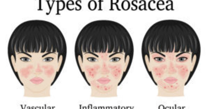 Amarillo Chiropractor Says This Is The Rosacea Article That May Help