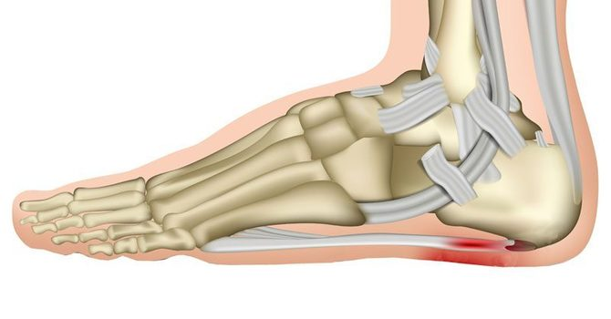 4 Ways to Ease Pain From Plantar Fasciitis image