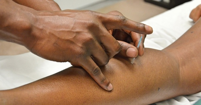 Doctors Prove The Use Of Acupuncture For Chronic Pain image