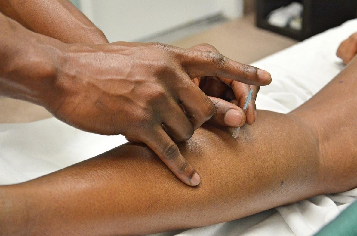 acpuncture in amarillo, amarillo acupuncture, chiropractors in amarillo, chiropractor in amarillo, amarillo chiropractor