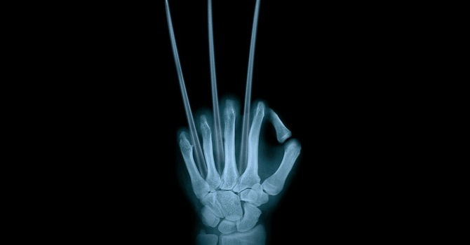 Do I Need To Get X-rays When I Go To A Chiropractor?