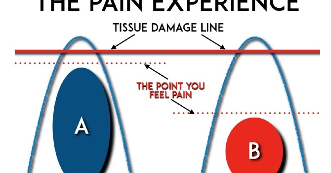 New Secrets to Decoding Chronic Pain image